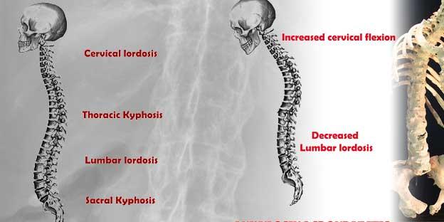 ankylosing-spondylitis-spondyloarthropathies
