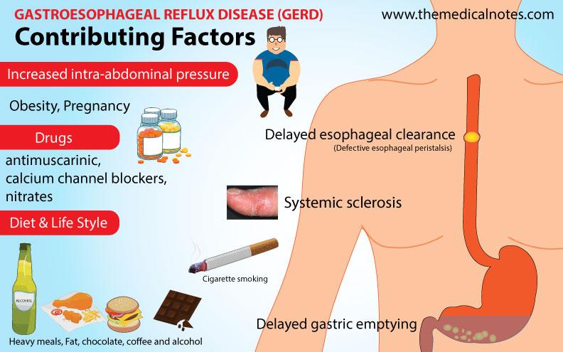 GERD-Contributing-Factors